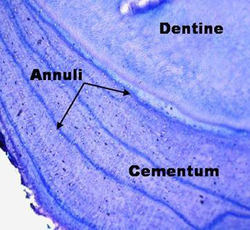 Cementum slide of a tooth showing growth rings