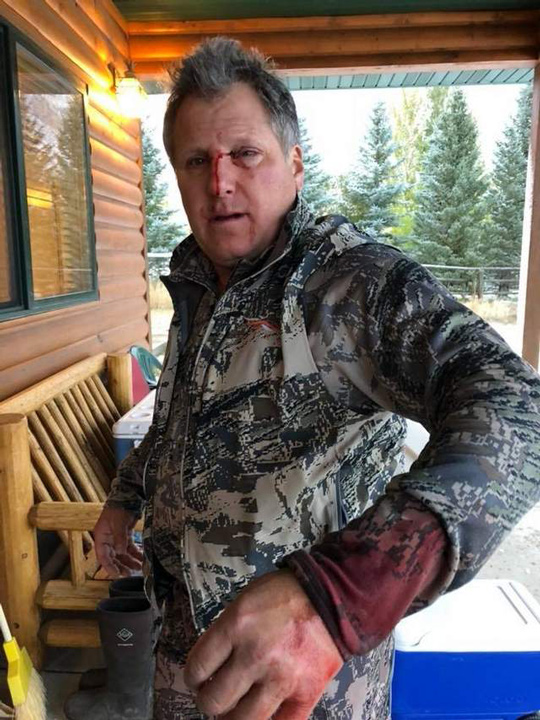 Montana hunter attacked by grizzly